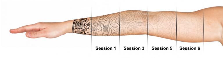 ta bort tatuering skövde